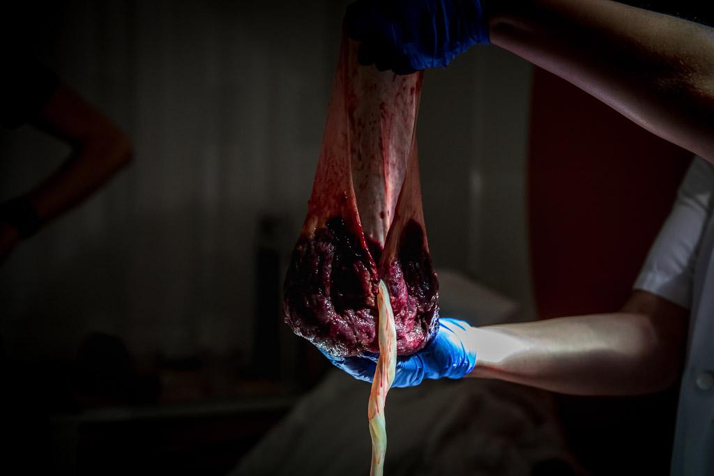 De placenta vastgelegd door Sandrinos Geboortefotografie